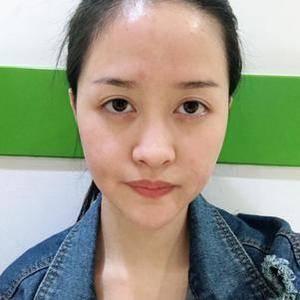 硅胶隆鼻术+自体脂肪填充