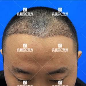 赵先生的发际线种植案例