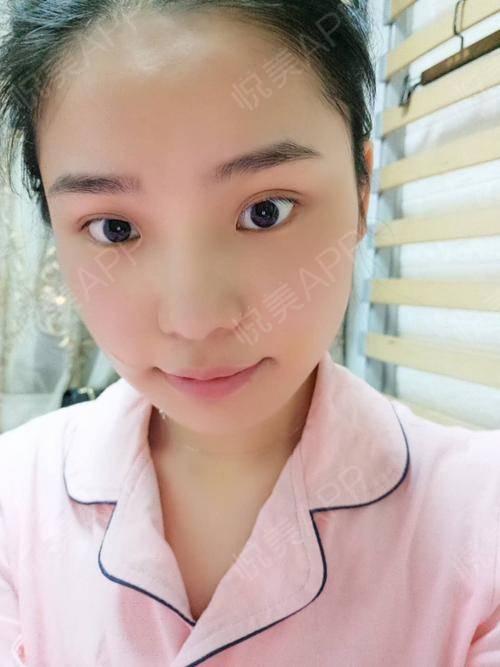根据我的脸型,李志海院长建议我,没有必要做颧骨,最大的问题是下颌角
