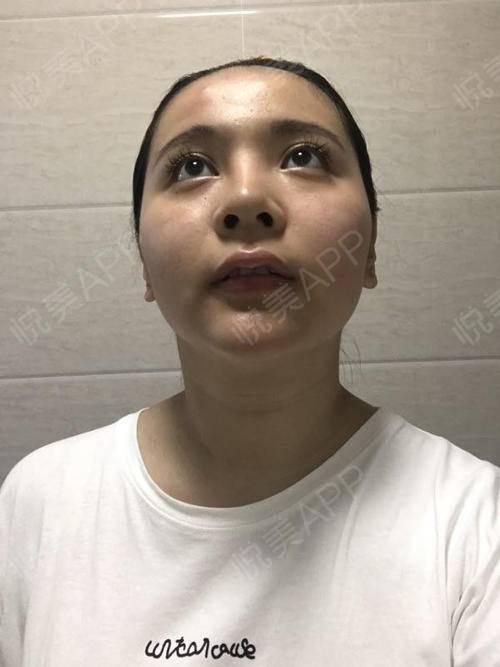 合肥歪鼻整形的方法 矫正歪鼻的方法。