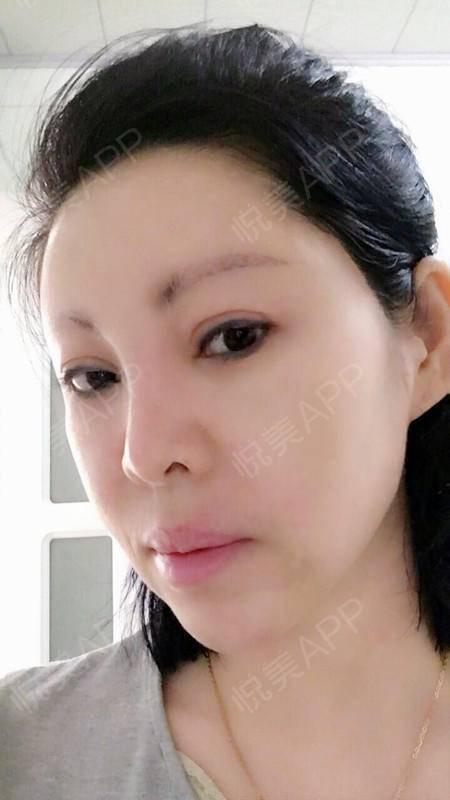 打完瘦脸针麻力量快一个月了,最期待的效果马减脂马上v瘦脸加有氧多久图片