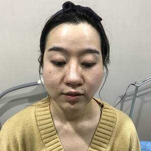 北京炫美.鼻综合.鼻小柱延长