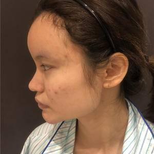 做鼻综合后的恢复过程