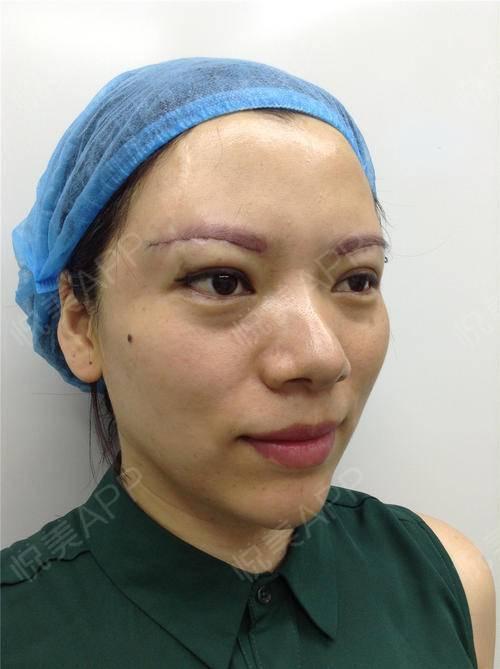 今天我刚做了提眉手术,这不手术一做完,我就赶紧的跑来写日记给大家图片