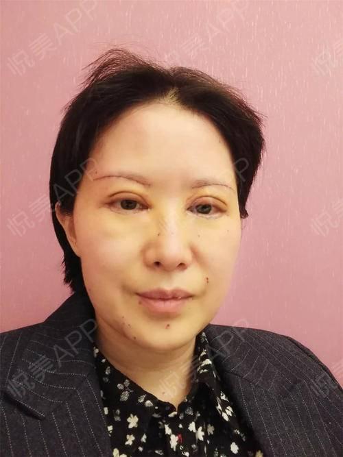 切眉提眉术后3天_半永久纹眉术后3天_全切双眼皮术后3天_眼周年轻化术图片