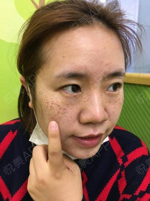激光祛斑术后3天_光子嫩肤术后3天_祛斑术后3天_美白嫩肤术后3天_皮肤