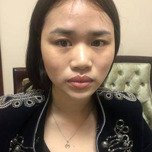 鼻综合 隆鼻手术