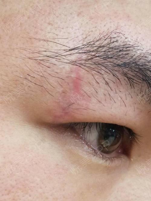 激光祛疤术后43天_去疤痕术后43天_皮肤美容术后43天_青青紫倾分享