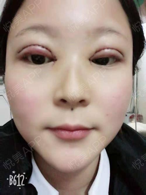 眼综合_眼综合整形术后7天_眼综合术后7天_眼部术后7天_白衣走天下分享图片1