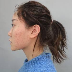 沈阳杏林 鼻部综合整形