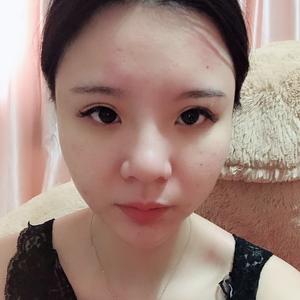 郑州元素美学整形肋软骨隆鼻