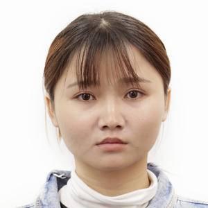 变脸大法二 の 玻尿酸隆鼻和垫下巴