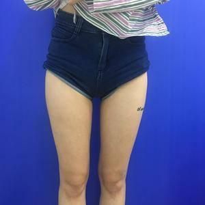 安黛美吸脂瘦大腿