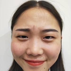 眼睛进化录