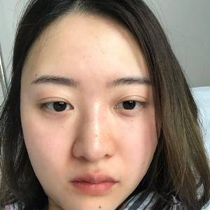 鼻综合+肋软骨