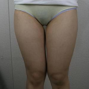 吸脂的瘦身效果只有做了的人才知道多好