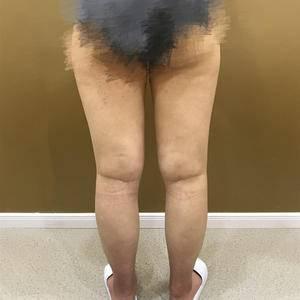 大腿吸脂日记