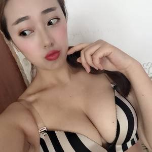 假体隆胸日记本
