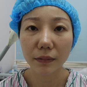 爱莱美医疗美容+鼻修复