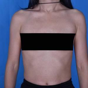 假体隆胸术