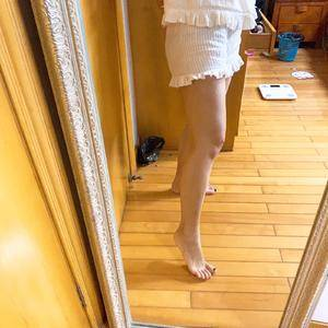 大腿吸脂+自体脂肪丰胸