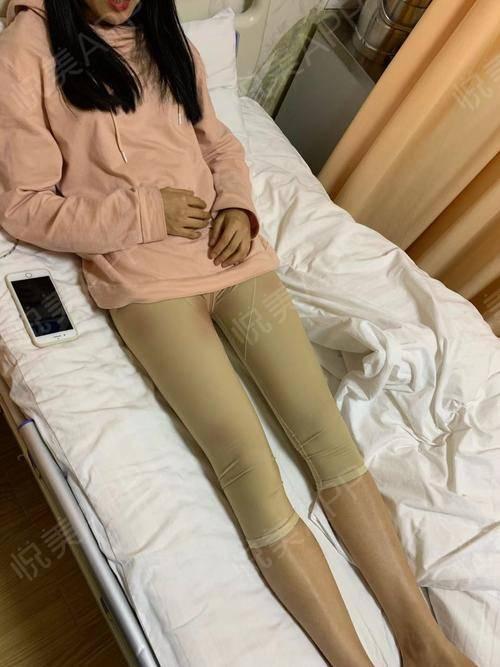 吸脂大腿减肥_大腿吸脂/大腿吸脂多少钱_大腿吸脂减肥方法
