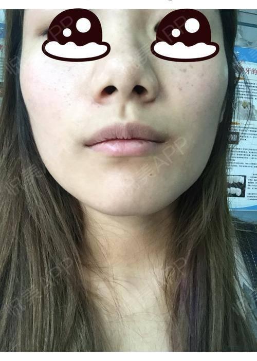 今天去拔了智齿,两边脸是不是一样大了呢?