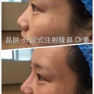玻尿酸分段式注射隆鼻