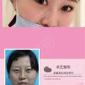 做的双眼皮 开眼角 隆鼻项目 和术前一比效果非常明显 改头换貌了