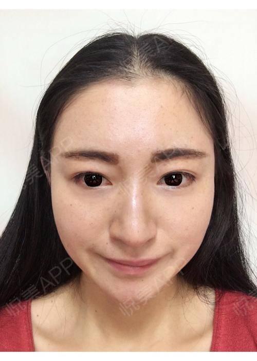 光子后第3天,还是感觉脸上好脏。前3张照片只是晨洁后简单擦了妆前,后两张照片是上了粉底的。对于女孩子来说皮肤好真的很重要...