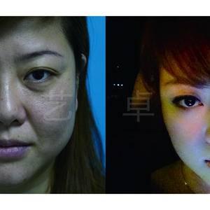 微光逆转术 面部年轻化