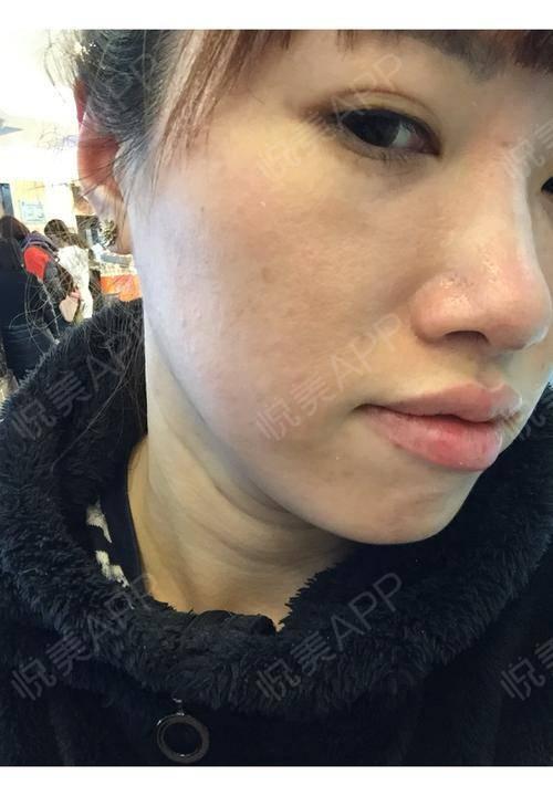 一个月了,左边的脸旁边有一点点色素沉着,右边脸没有。不知道自己是不是疤痕体质,以后不敢打了都……