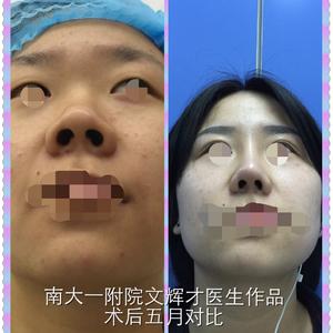 重睑并综合隆鼻手术五月对比