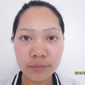 進口假體綜合隆鼻