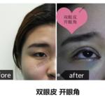 内双化眼妆难 不如直接割双眼皮