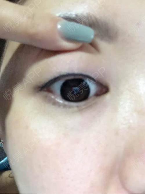 纹完美瞳线4天了,今天美瞳线已掉痂了,一个月以后再去医院补一下色。简单说一下我纹美瞳线的过程,敷了半个小时的麻药,纹的时...