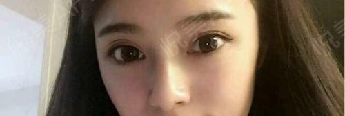 不知道为什么,我看别人第一眼就是看鼻子,对自己的鼻子也是非常的关注,可能是看的久了,觉的自己的鼻子不好看,要是鼻梁能高一...