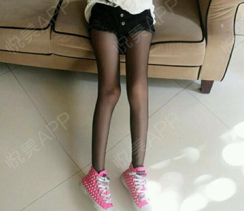 首先我不是因为肥胖才导致的小腿粗,我是属于肌肉形小腿,小腿肌肉特别发达,所以经过咨询之后医生建议我注射瘦腿针解决小腿粗问...