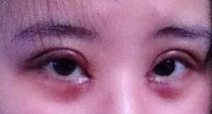 我做的双眼皮加开眼角恢复照