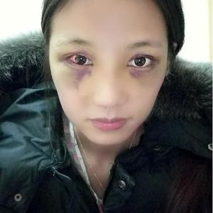 美美哒的综合隆鼻+韩式双眼皮