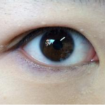 内双的2种双眼皮手术方法