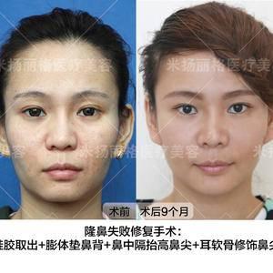隆鼻失败修复手术:自然天成