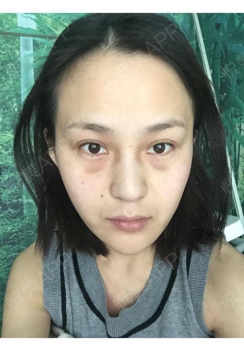 现在已经是半年的效果感觉脸还是瘦瘦的效果挺好的医生手法也很熟练