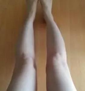 【真实案例】大腿吸脂去掉脂肪