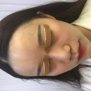 Rosemary深圳妍熙双眼皮日记第42页第2页图