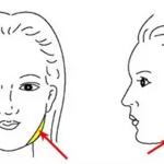 瘦脸针打完后,咬肌还会变回原来那样吗?