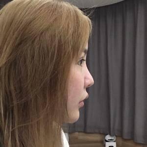 鼻部修复,鼻头鼻翼鼻小柱多部位手术