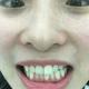 准备做洁牙和美白咯,从来没正面仔细观察过,这牙垢看得我真的是想吐了,而且我是氟斑牙,为什么,我怎么回...