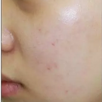 案例】激光祛痘+祛斑