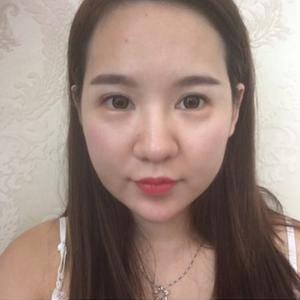 面部大改造:眼鼻修复+面部吸脂
